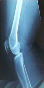 X-ray of patient's knee