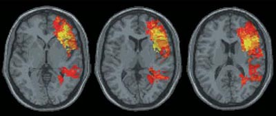 3 Brain scans reveal cognitive function after brain injury