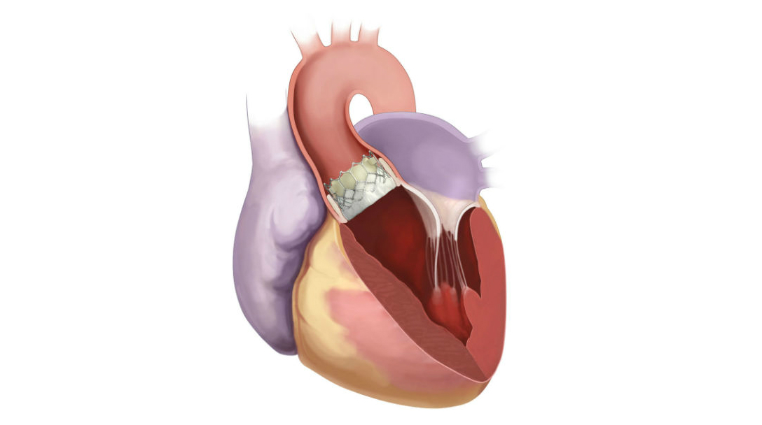 The Edwards SAPIEN 3 valve is a collapsible aortic heart valve that is implanted in the body during a transcatheter aortic valve replacement (TAVR) procedure.