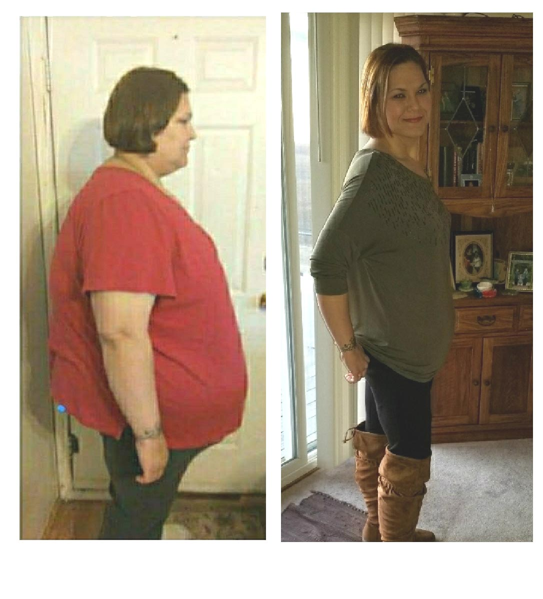 rachel-lisner-before-and-after1-metabolic-health-and-surgical-weight-loss-center