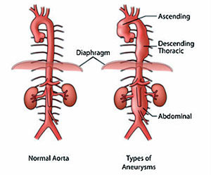 Types for Aneurysms