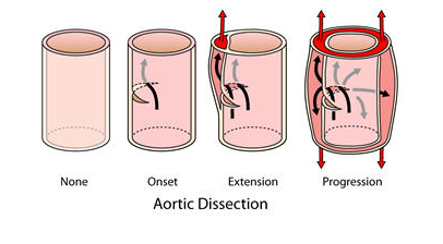 Northwestern Medicine Aortic Dissection