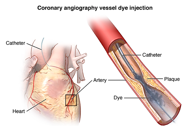 Coronary angiography vessel dye injection