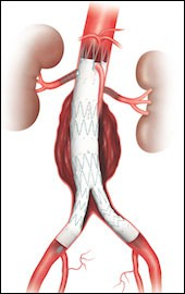 Endovascular Grafts in the Body
