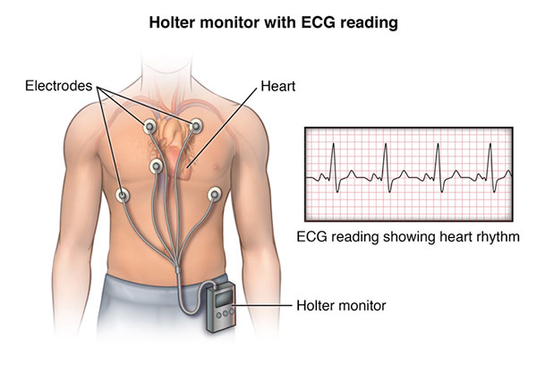 Holter monitor with ECG reading