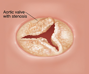 Illustration of aortic valve