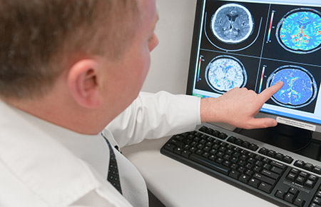 A Northwestern Medicine physician examining a brain scan to diagnose epilepsy.