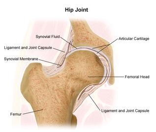 Hip Replacement Surgery   Northwestern Medicine