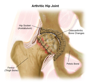 Arthritic Hip Joint