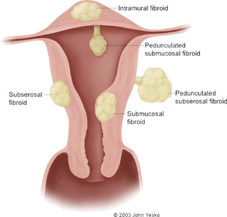 diagram of uterine fibroids