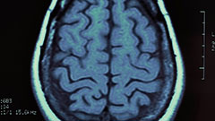 Scan of a brain