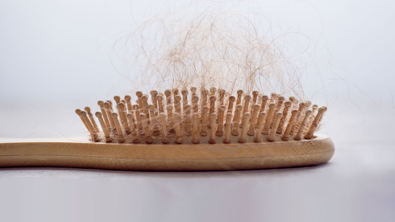 nm-hair-loss-what-you-need-to-know_feature