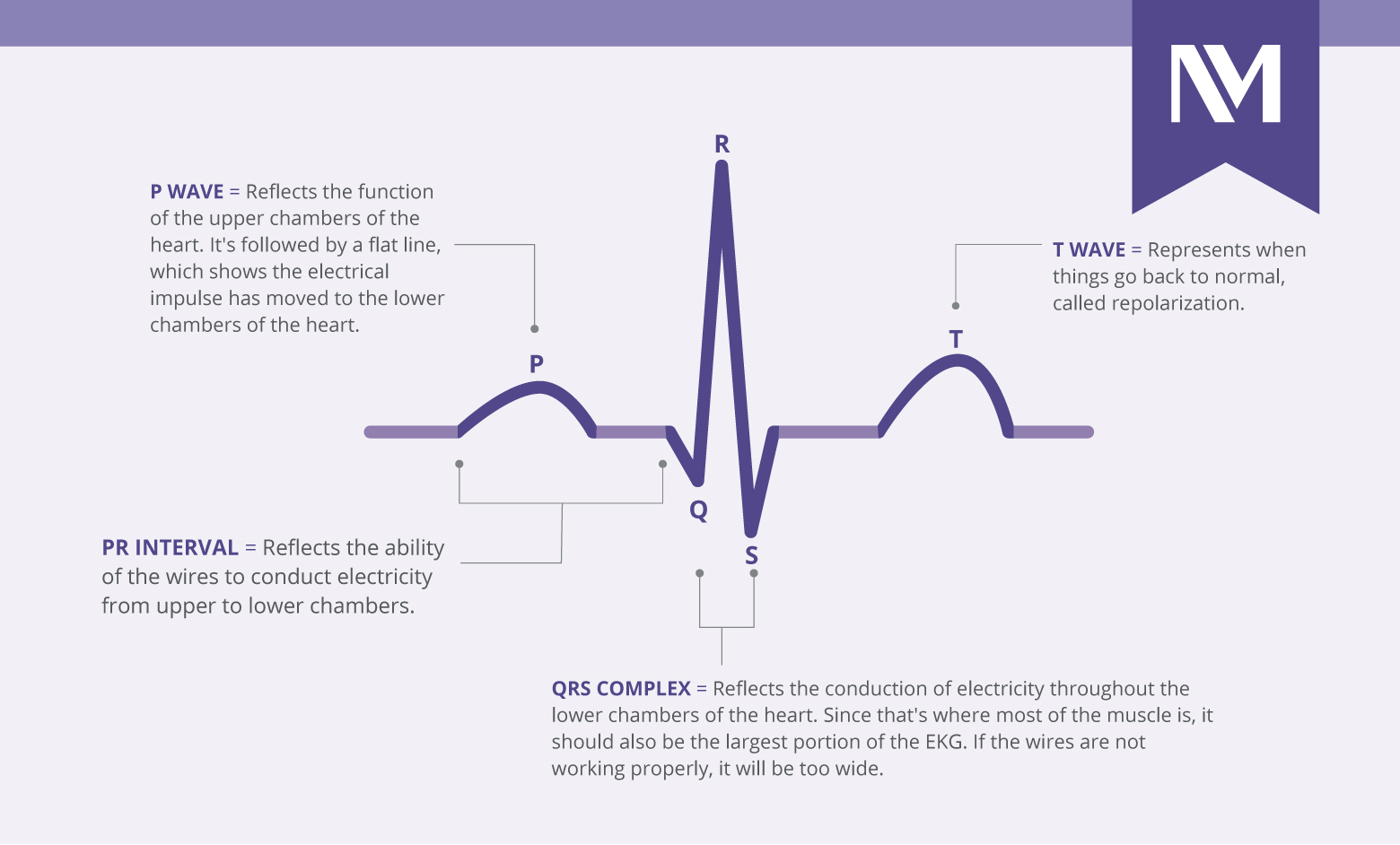 nm-how-to-read-EKG_line