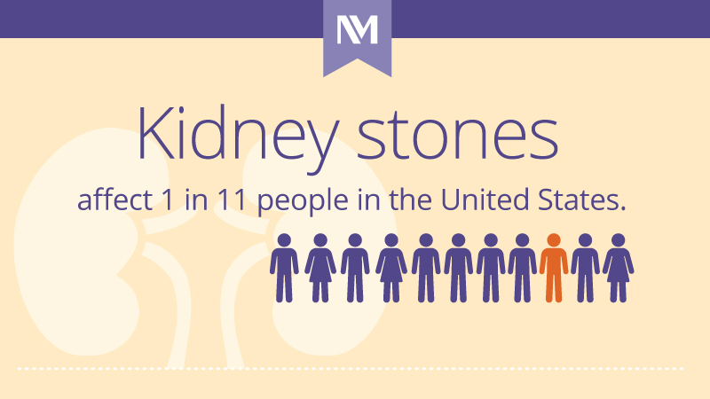 nm-kidney-stones-101_preview