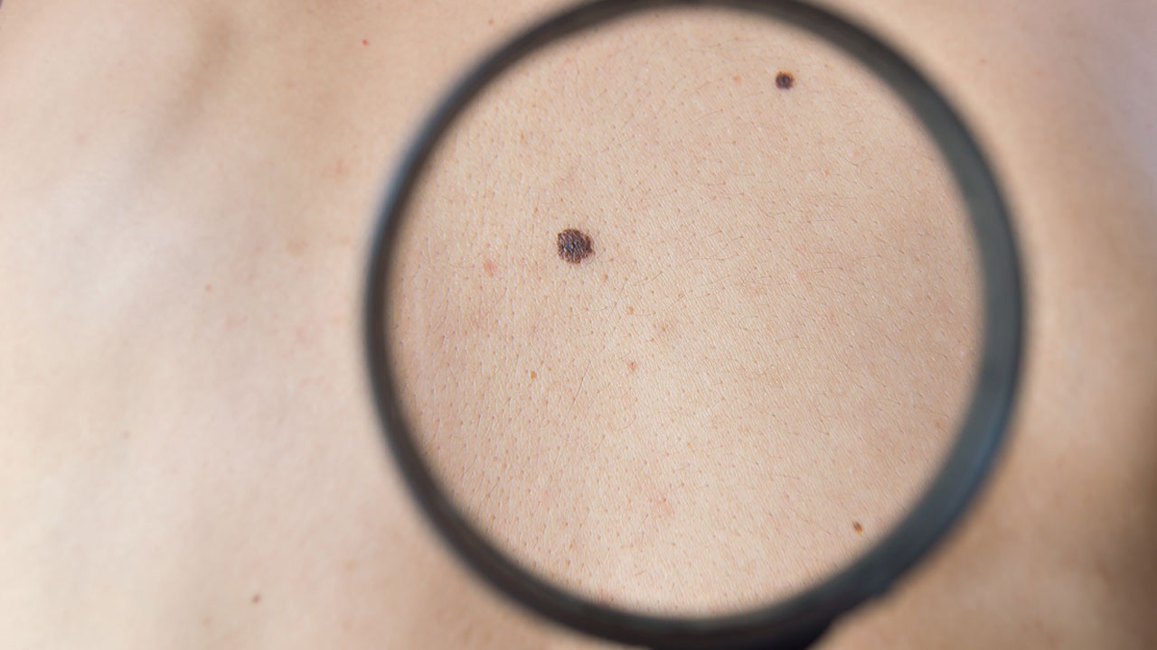 nm-what-is-melanoma_feature