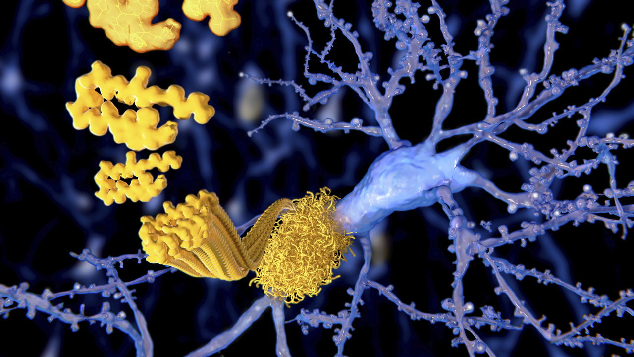 nm-what-we-know-about-alzheimers_feature