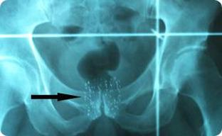 Prostate_Seed_Implant_X-ray