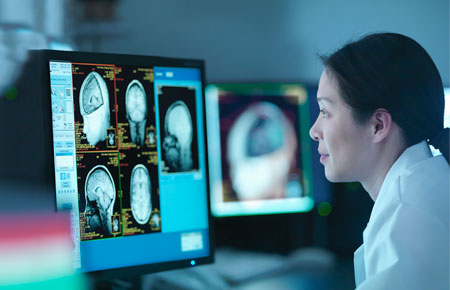 A movement disorders physician reviewing a brain scan on a computer.